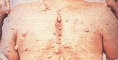 คุมเข้มโรคเรื้อน 3 จังหวัดชายแดนใต้ หลังพบผู้ป่วยรายใหม่เพิ่มขึ้น